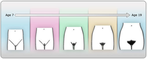 female breast development age